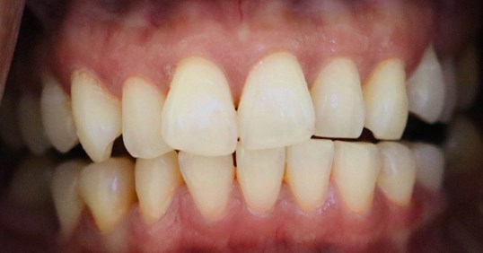 Teeth Whitening before after Before