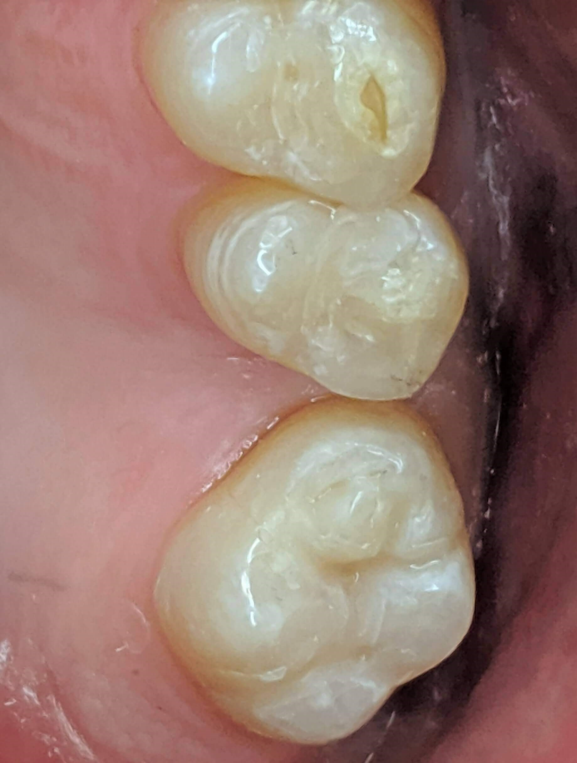 Fillings before and after After
