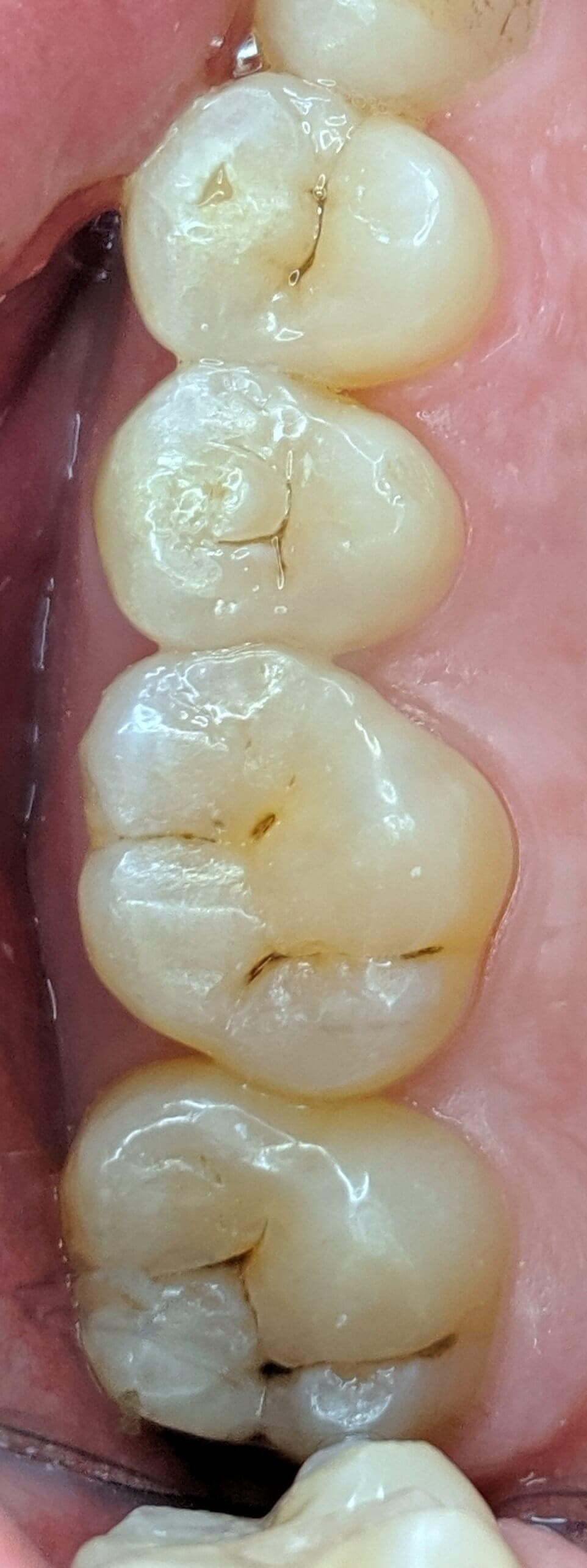 Fillings before and after Before