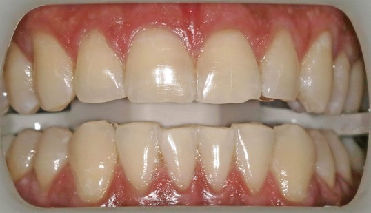 Teeth Whitening before after After